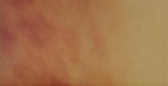 Клинкерная плитка Клинкерная плитка Cerrad Autumn Leaf 300x148x11